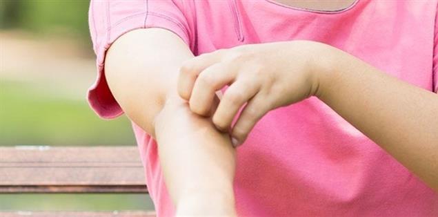 Kratzen bei Neurodermitis am Arm