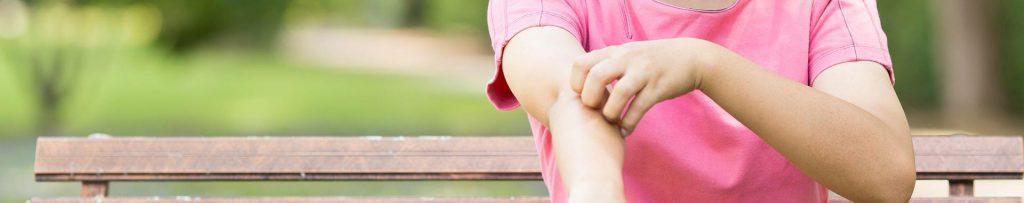 Person mit Neurodermitis kratzt sich am Arm