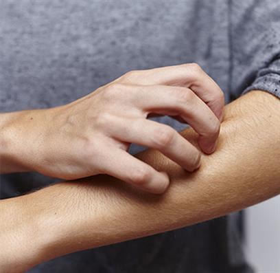 Person kratzt sich am Arm mit Schuppenflechte